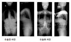 국내 연구진, 요부 변성 후만증 효과적 수술법 증명