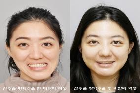 심한 얼굴비대칭 미얀마인, 선수술 양악수술 받고 새 삶