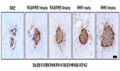 종근당 '듀비에', 당뇨 환자의 췌장 베타세포 보호효과 입증